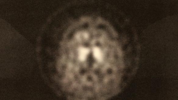 Isabella Still - Brain Scan